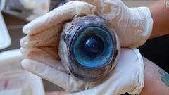 giant-eyeball