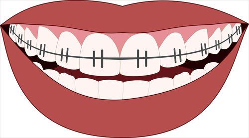orthodontics-3109763_1280_R