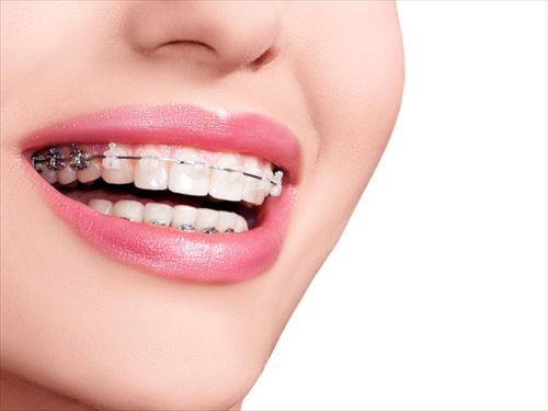 彼女に歯列矯正をさせる方法