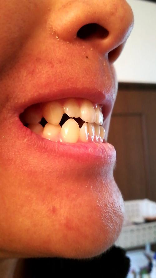 口が歯並び悪くて閉じれないんやが