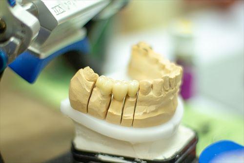 神経を抜いた奥歯をセラミックにするか保険適用銀歯にするかものすっごい悩んでるんだが君たちどうしてる???