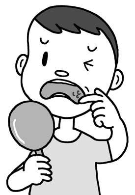 口内炎はハチミツで治る。治療薬以上の効果を大学が実証