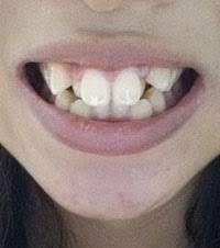歯列矯正は義務化されるべき