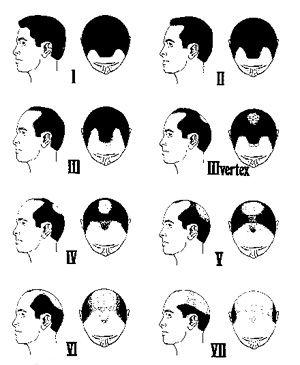 髪が生えてくるかもしれない民間療法 レモン、アロエ、カード(乳製品)を頭皮に塗る