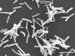 プリン体を無毒化する乳酸菌発見。これで発泡酒がたくさん呑めるな