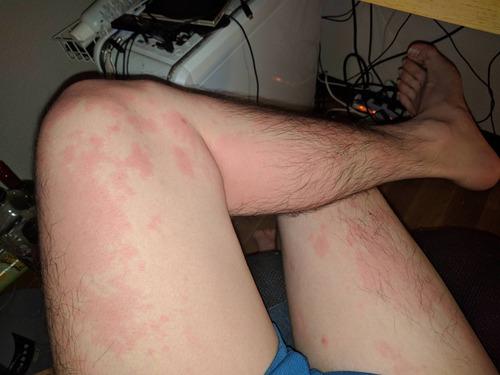 酒を飲むとこんな斑点が出るんだけどアレルギーか?