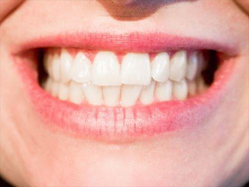 歯医者のホワイトニングに自身ニキ