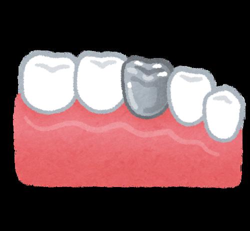 前歯以外全部の歯が銀歯なんやけどどうにかしたい