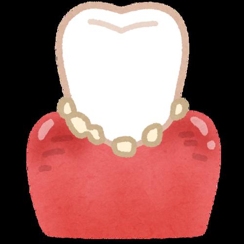 7年ぶりに歯石除去した結果
