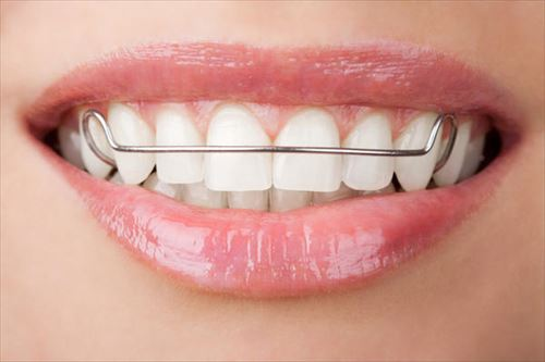 s-photo-of-front-teeth_R