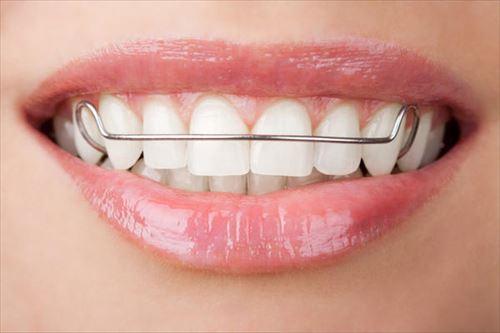 歯の矯正詳しいの来てや