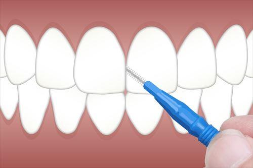 人生初の歯間ブラシを試みた結果………