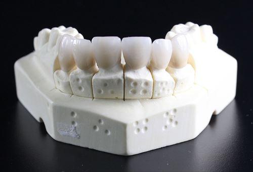 奥歯がほぼないやつおる?