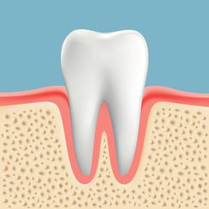 歯周病って治るの?
