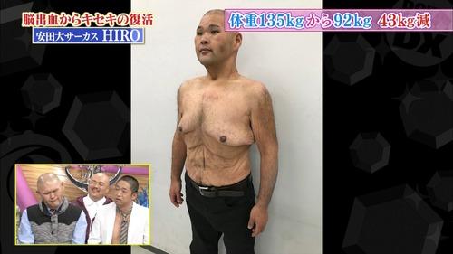 【裸画像あり】 安田大サーカス・HIRO、100kg減量した肉体を公開