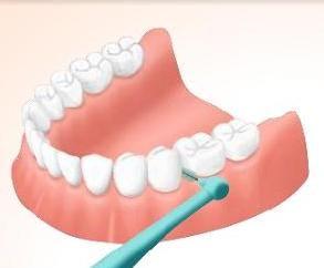 歯間ブラシした結果wwwwwwww