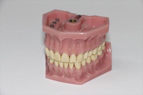 40代で入れ歯になるんだが