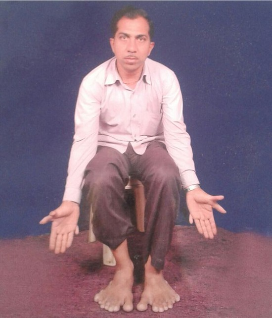 PAY-Devendra-Suthar-showing-his-28-fingers-and-toes