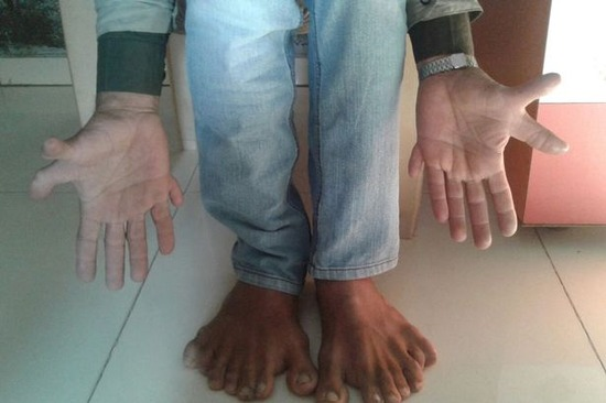 PAY-Devendra-Suthar-showing-his-28-fingers-and-toes (1)