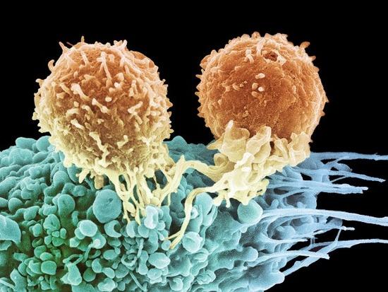 sn-immunotherapyH