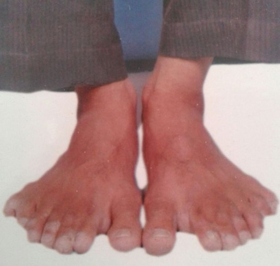 PAY-Devendra-Suthar-showing-his-28-fingers-and-toes (3)