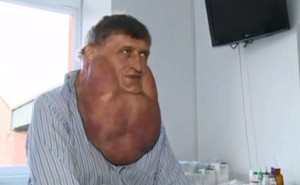 Massive+tumor+removed+from+man's+face+01