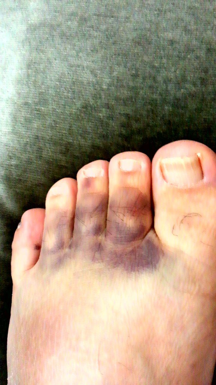 内出血 た ぶつけ 足 指 の