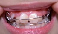器具あり歯
