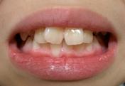器具なし歯