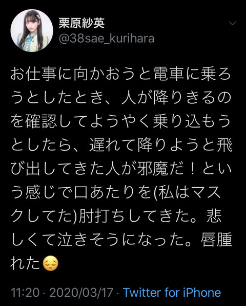 【悲報】HKT48栗原紗英、電車内で暴行され唇が腫れてしまう・・・