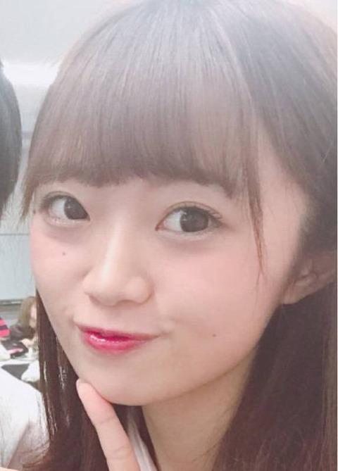 【NGT48】中井りか(笑)の顔のクマが酷い!もうみんな叩かないであげてwww