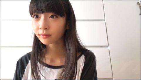 【NGT48】荻野由佳さん、歯列矯正を始める