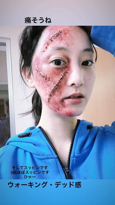 【悲報】松井玲奈さん、顔面にとんでもないレベルの大怪我を負ってしまう・・・