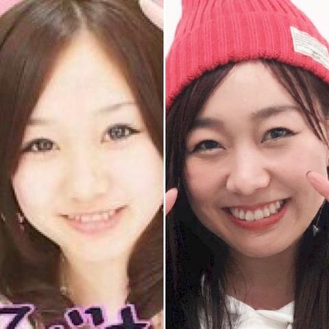 【SKE48】須田亜香里「10年前のプリクラと並べてみた。これじゃ整形疑惑も出せないわw」