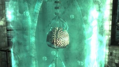 Calvert_brain