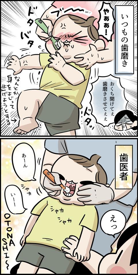 歯の検診1