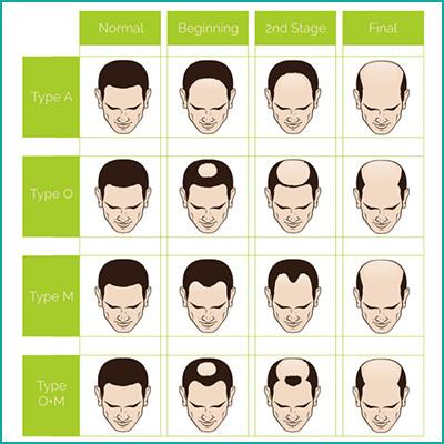 loss-hair-chart-1