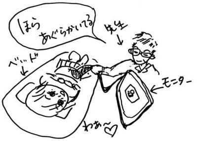 妊婦日記_エコー