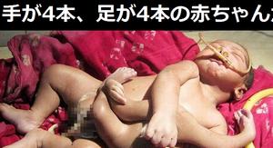 【閲覧注意】手が4本、足が4本の赤ちゃんが生まれる…「神の子」と命名