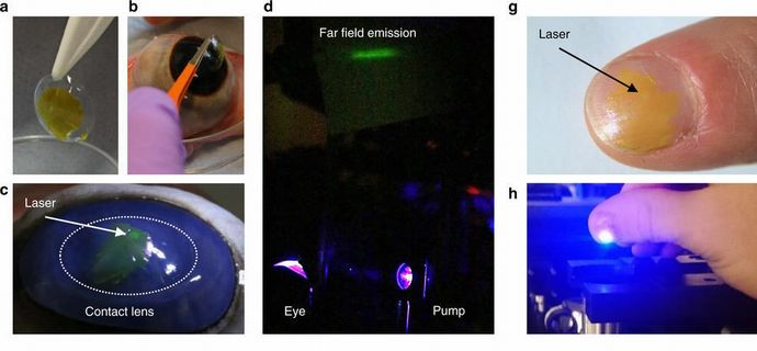 laser-pupilente2
