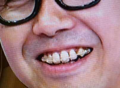 歯並び 矢作