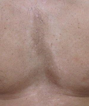 石井胸2ヶ月