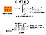 MT2図ブログ