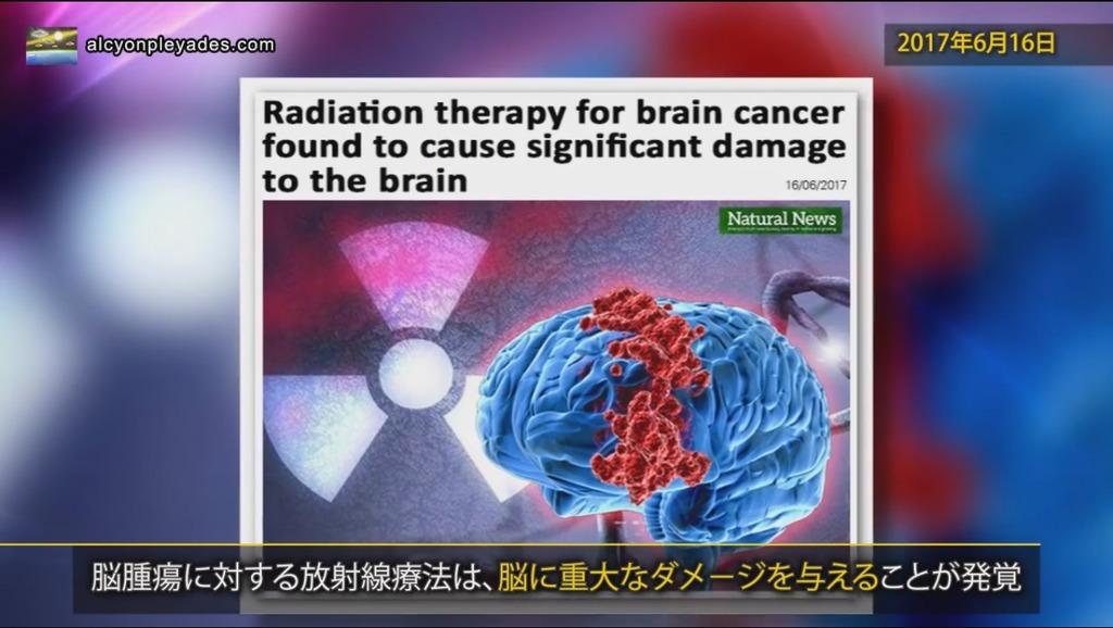 放射線療法 脳ダメージAPN67