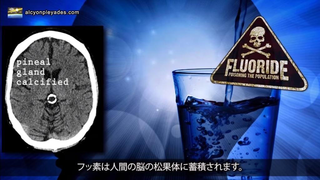 松果体 フッ素石灰化 APN71