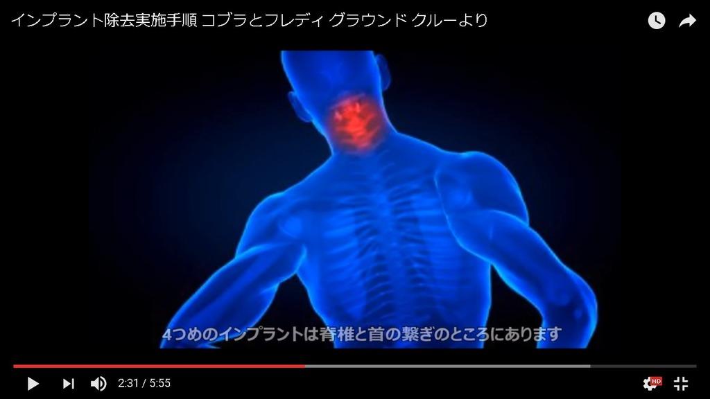 Cobraインプラント頚椎