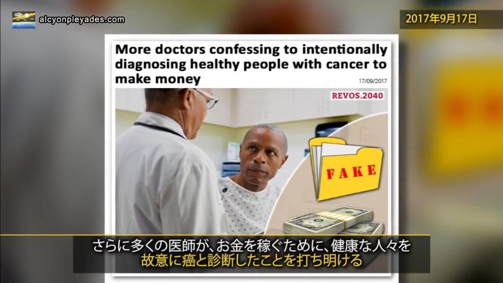 癌 故意に誤診APN67
