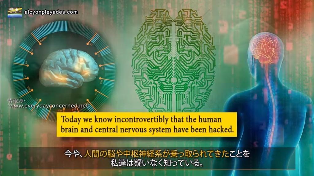 脳乗っ取りAPN71