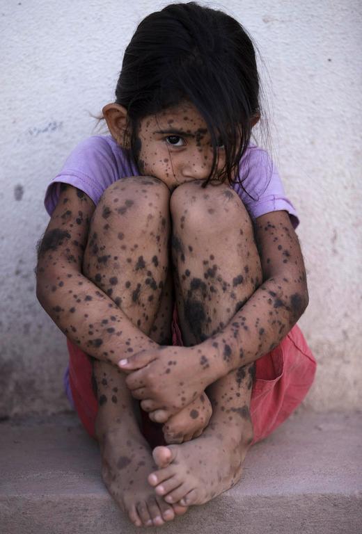 GMO体中に斑点のあるアルゼンチンの少女