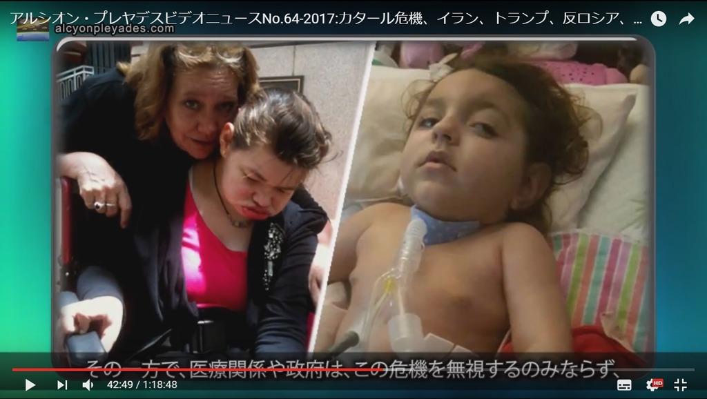 ワクチン被害者APN64